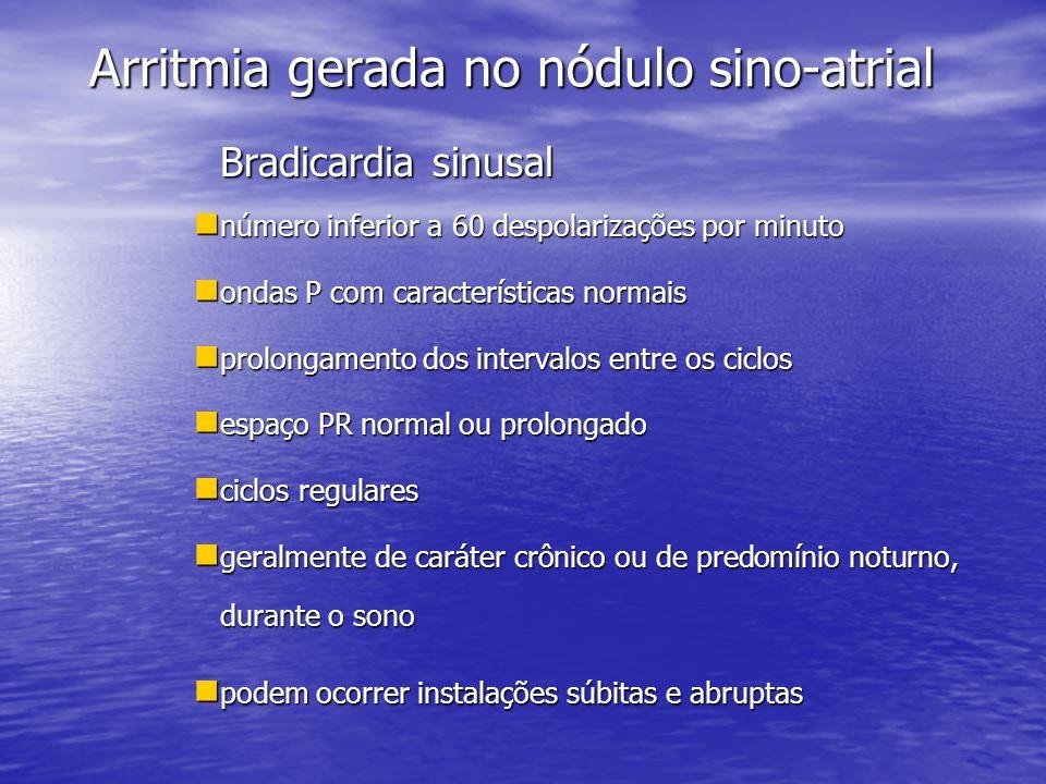 Arritmia gerada no nódulo sino-atrial Bradicardia sinusal  número inferior a 60 despolarizações por minuto  ondas P com características normais  pr
