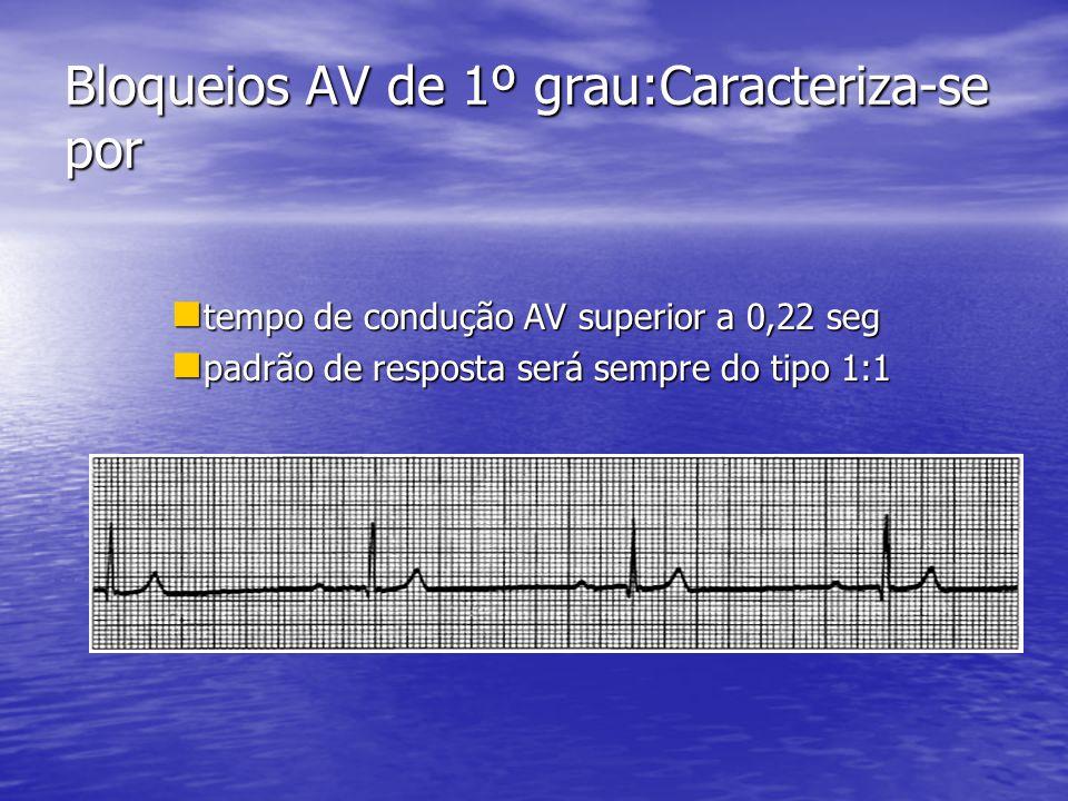Bloqueios AV de 1º grau:Caracteriza-se por  tempo de condução AV superior a 0,22 seg  padrão de resposta será sempre do tipo 1:1