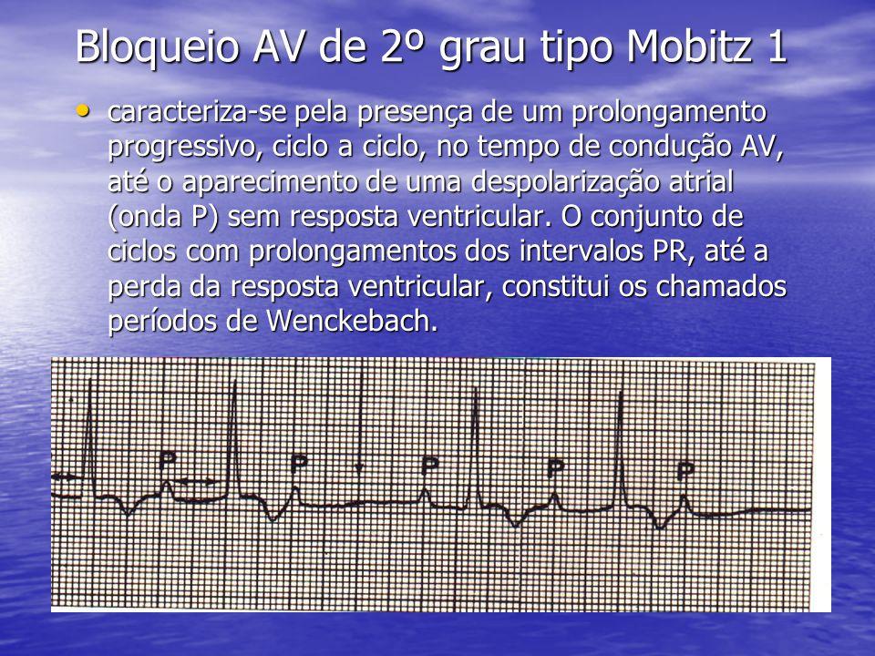 Bloqueio AV de 2º grau tipo Mobitz 1 • caracteriza-se pela presença de um prolongamento progressivo, ciclo a ciclo, no tempo de condução AV, até o aparecimento de uma despolarização atrial (onda P) sem resposta ventricular.