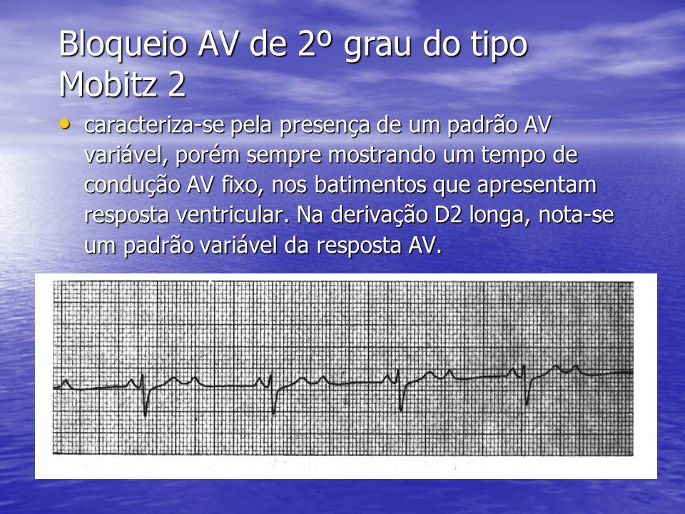 Bloqueio AV de 2º grau do tipo Mobitz 2 • caracteriza-se pela presença de um padrão AV variável, porém sempre mostrando um tempo de condução AV fixo, nos batimentos que apresentam resposta ventricular.