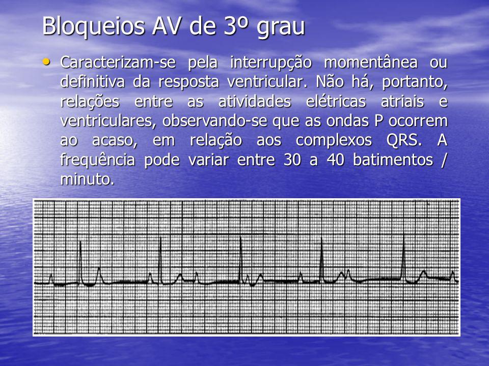 Bloqueios AV de 3º grau • Caracterizam-se pela interrupção momentânea ou definitiva da resposta ventricular. Não há, portanto, relações entre as ativi