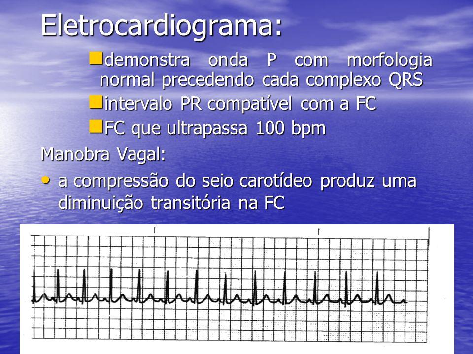 Eletrocardiograma:  demonstra onda P com morfologia normal precedendo cada complexo QRS  intervalo PR compatível com a FC  FC que ultrapassa 100 bpm Manobra Vagal: • a compressão do seio carotídeo produz uma diminuição transitória na FC