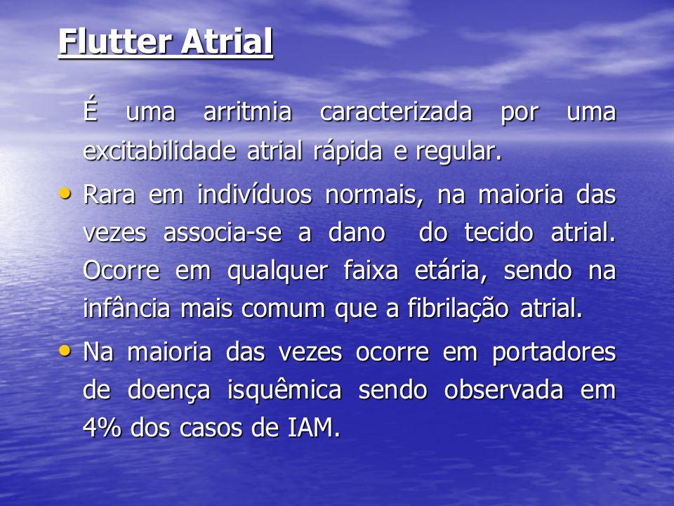 Flutter Atrial É uma arritmia caracterizada por uma excitabilidade atrial rápida e regular. • Rara em indivíduos normais, na maioria das vezes associa
