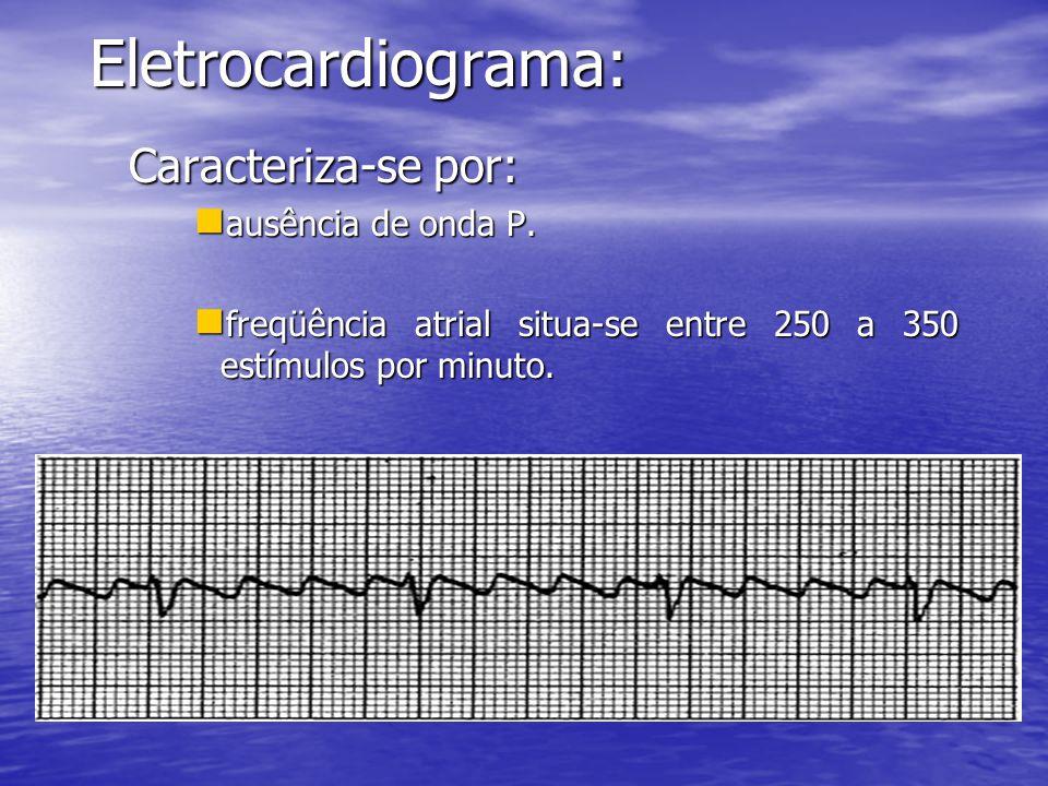 Eletrocardiograma: Caracteriza-se por:  ausência de onda P.  freqüência atrial situa-se entre 250 a 350 estímulos por minuto.