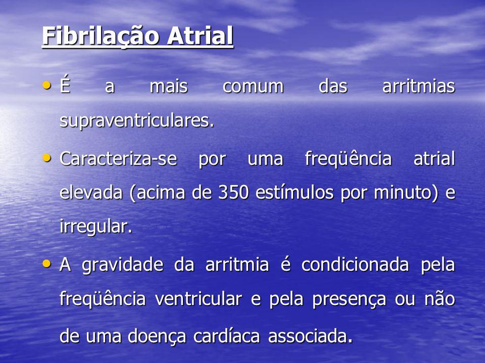 Fibrilação Atrial • É a mais comum das arritmias supraventriculares. • Caracteriza-se por uma freqüência atrial elevada (acima de 350 estímulos por mi