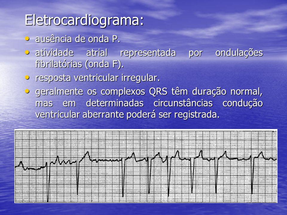 Eletrocardiograma: • ausência de onda P. • atividade atrial representada por ondulações fibrilatórias (onda F). • resposta ventricular irregular. • ge