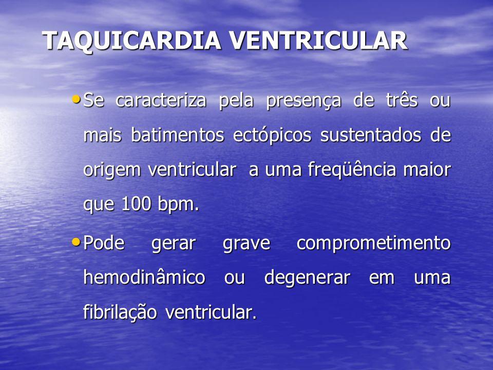 TAQUICARDIA VENTRICULAR • Se caracteriza pela presença de três ou mais batimentos ectópicos sustentados de origem ventricular a uma freqüência maior q