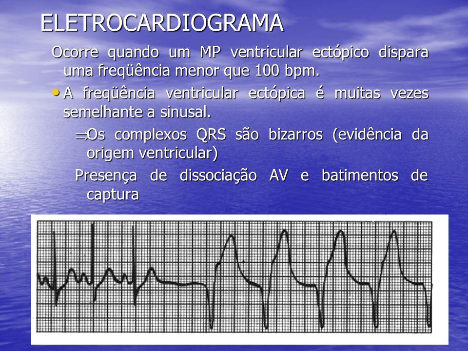 ELETROCARDIOGRAMA Ocorre quando um MP ventricular ectópico dispara uma freqüência menor que 100 bpm. • A freqüência ventricular ectópica é muitas veze