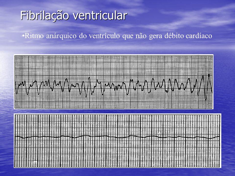 Fibrilação ventricular •Ritmo anárquico do ventrículo que não gera débito cardíaco