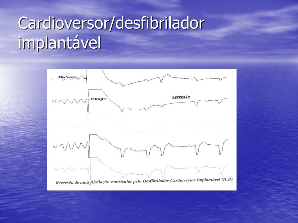 Cardioversor/desfibrilador implantável