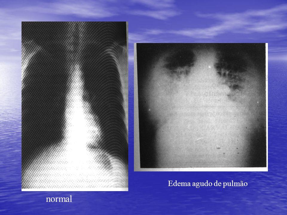 normal Edema agudo de pulmão