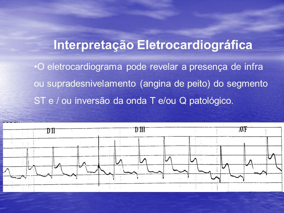 Interpretação Eletrocardiográfica •O eletrocardiograma pode revelar a presença de infra ou supradesnivelamento (angina de peito) do segmento ST e / ou