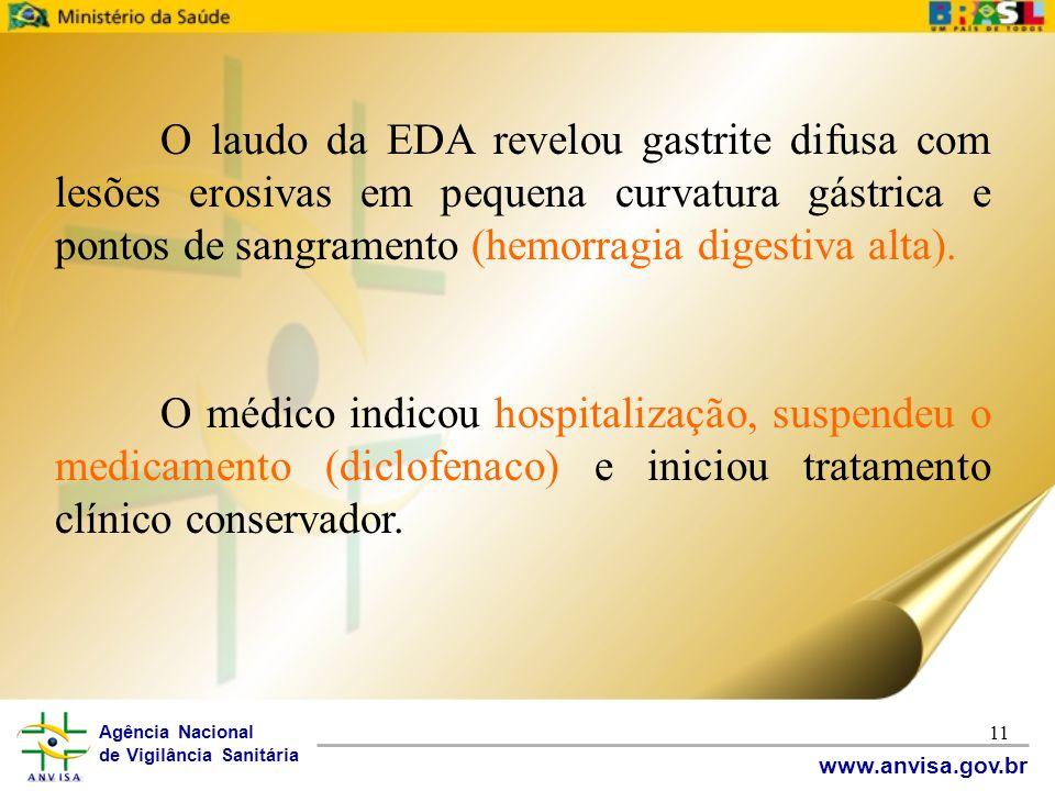 Agência Nacional de Vigilância Sanitária www.anvisa.gov.br 11 O laudo da EDA revelou gastrite difusa com lesões erosivas em pequena curvatura gástrica