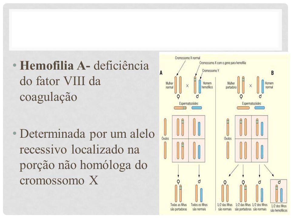 • Hemofilia A- deficiência do fator VIII da coagulação • Determinada por um alelo recessivo localizado na porção não homóloga do cromossomo X