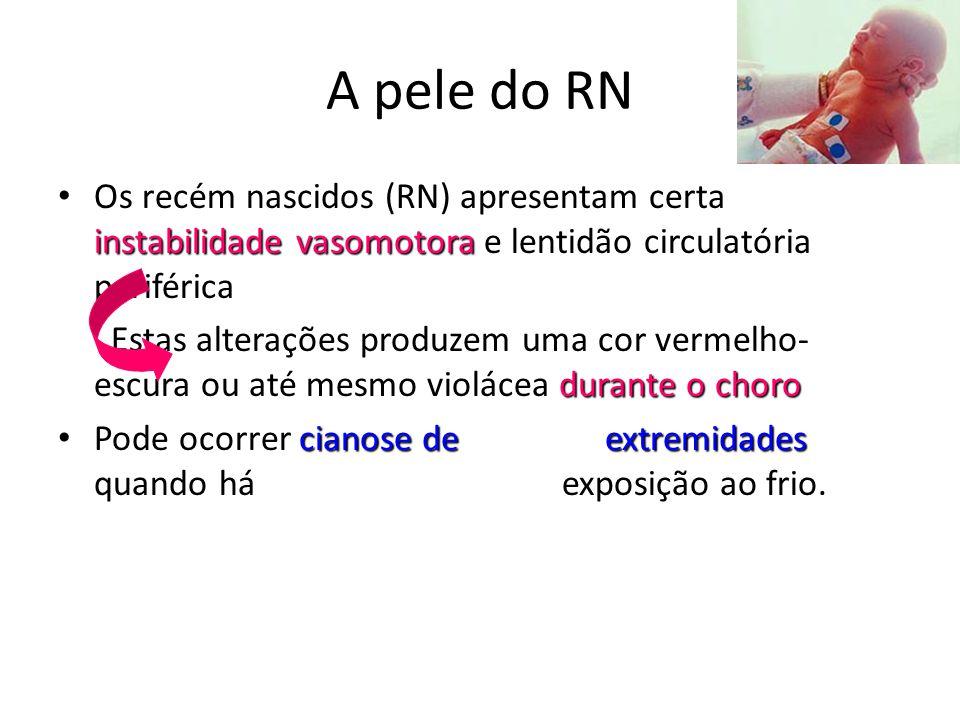 A pele do RN instabilidade vasomotora • Os recém nascidos (RN) apresentam certa instabilidade vasomotora e lentidão circulatória periférica durante o