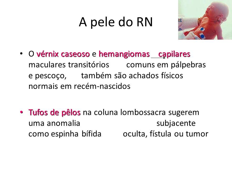 A pele do RN vérnix caseoso hemangiomas capilares • O vérnix caseoso e hemangiomas capilares maculares transitórios comuns em pálpebras e pescoço, tam