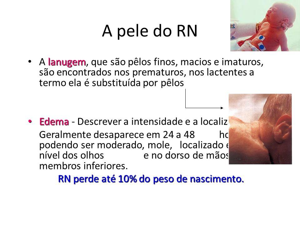 A pele do RN lanugem • A lanugem, que são pêlos finos, macios e imaturos, são encontrados nos prematuros, nos lactentes a termo ela é substituída por