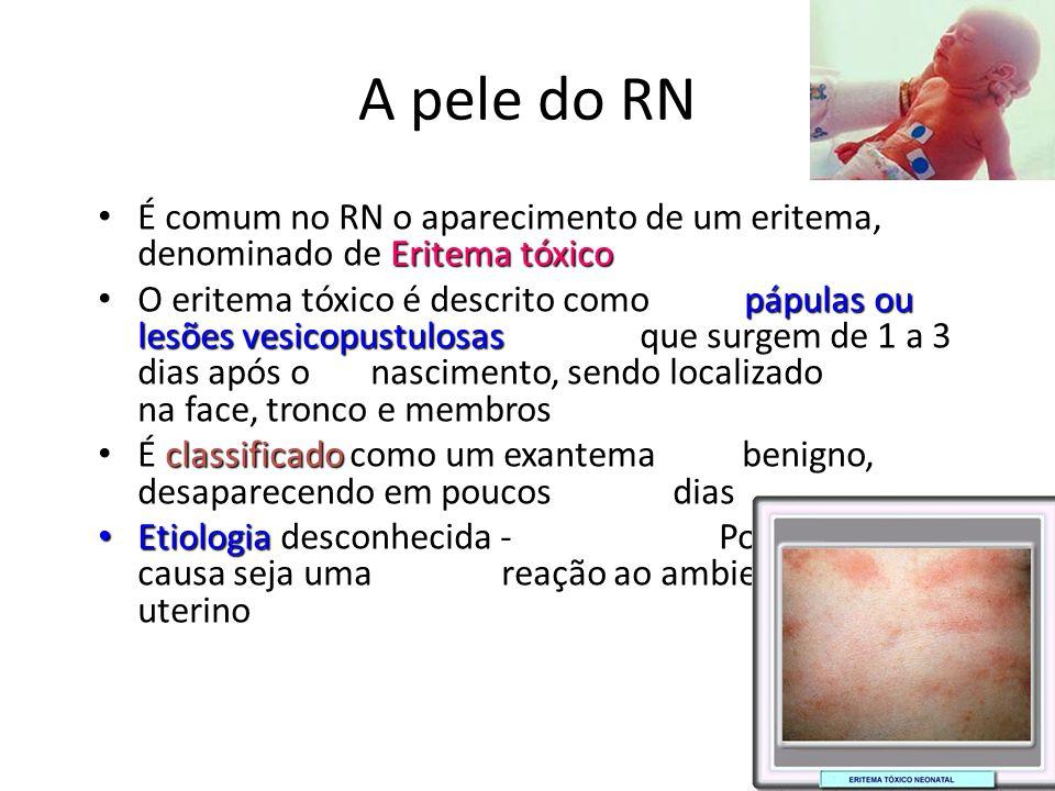 A pele do RN Eritema tóxico • É comum no RN o aparecimento de um eritema, denominado de Eritema tóxico pápulas ou lesões vesicopustulosas • O eritema
