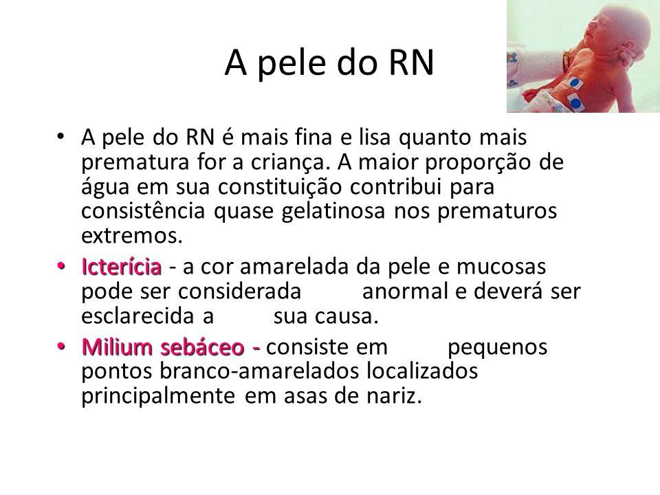 A pele do RN • A pele do RN é mais fina e lisa quanto mais prematura for a criança. A maior proporção de água em sua constituição contribui para consi