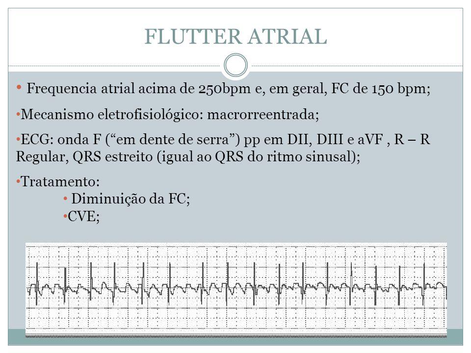 """FLUTTER ATRIAL • Frequencia atrial acima de 250bpm e, em geral, FC de 150 bpm; • Mecanismo eletrofisiológico: macrorreentrada; • ECG: onda F (""""em dent"""