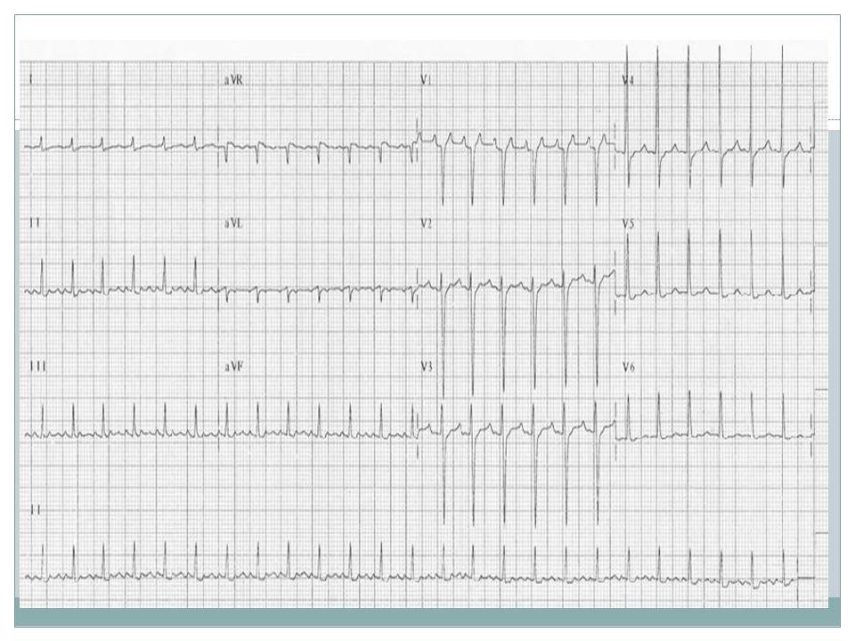 TAQUICARDIA ATRIAL UNIFOCAL  ECG: FC 100 – 250 bpm, QRS estreito, onda P não é positiva em DI, DII ou aVF;  Sustentada e não sustentada;  A CVE não