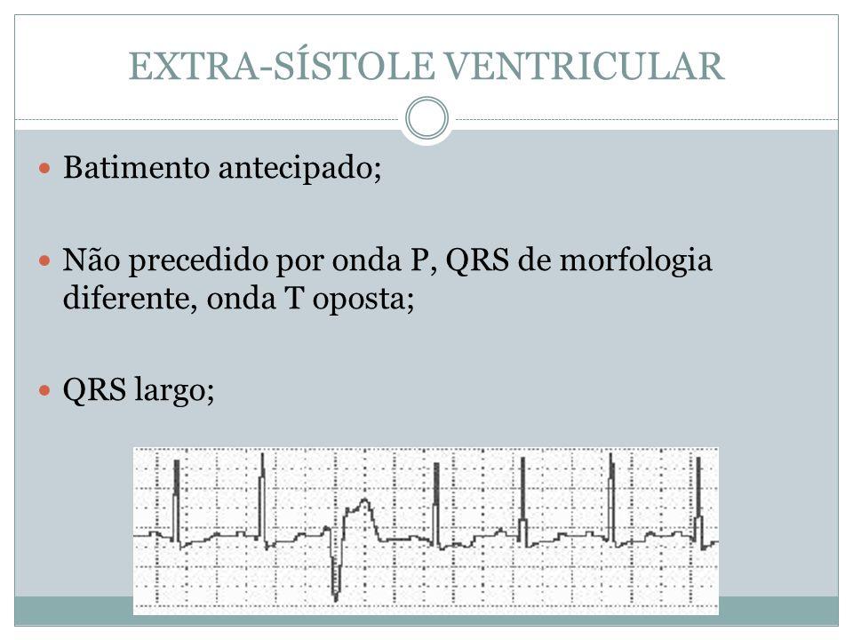 EXTRA-SÍSTOLE VENTRICULAR  Batimento antecipado;  Não precedido por onda P, QRS de morfologia diferente, onda T oposta;  QRS largo;
