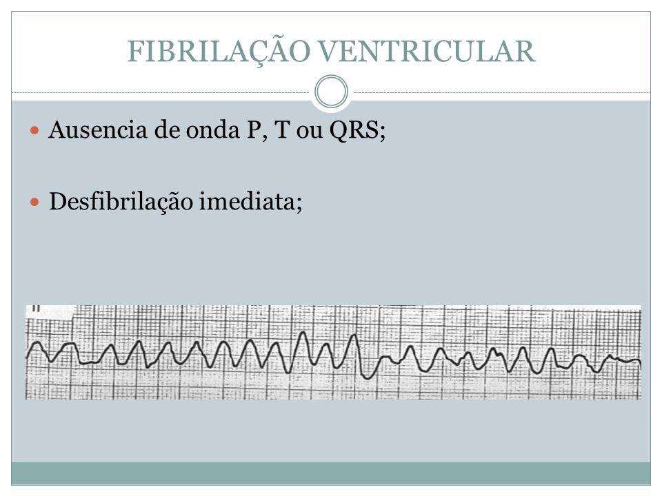 FIBRILAÇÃO VENTRICULAR  Ausencia de onda P, T ou QRS;  Desfibrilação imediata;