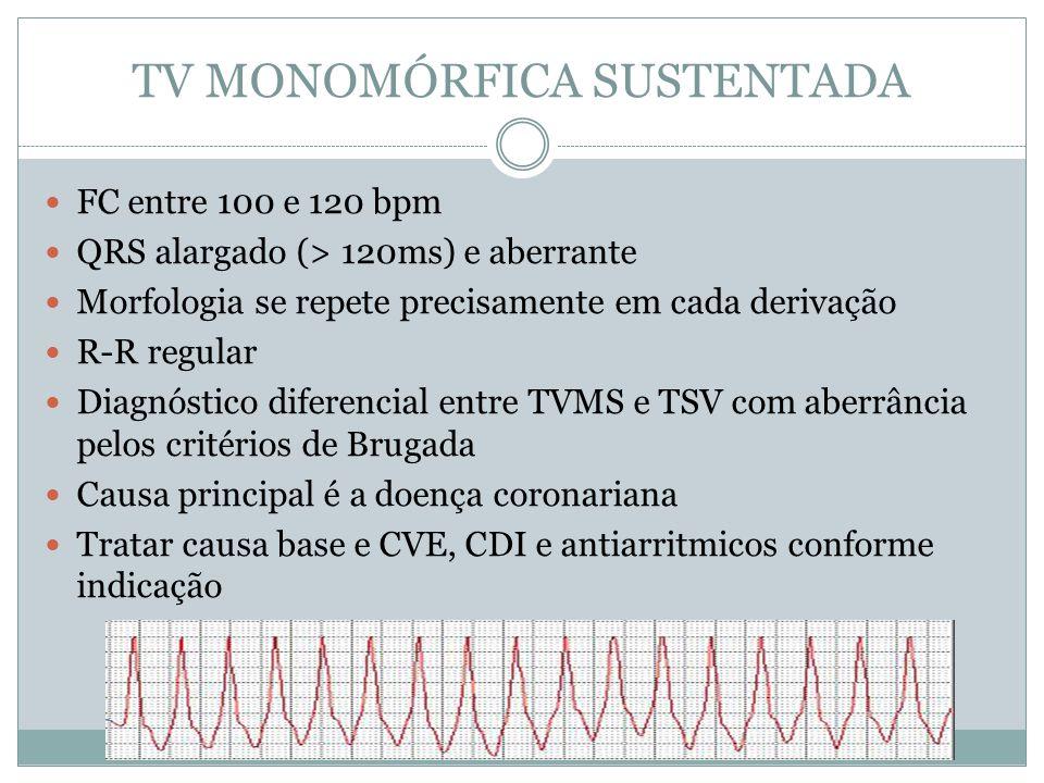 TV MONOMÓRFICA SUSTENTADA  FC entre 100 e 120 bpm  QRS alargado (> 120ms) e aberrante  Morfologia se repete precisamente em cada derivação  R-R re