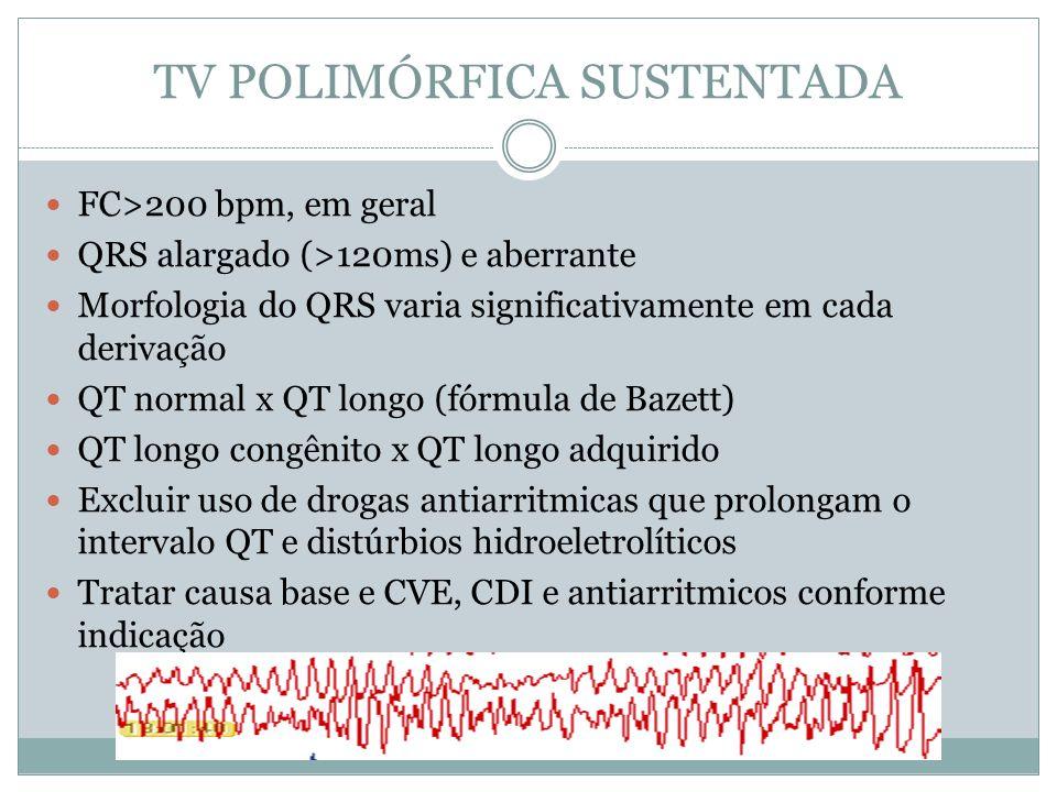TV POLIMÓRFICA SUSTENTADA  FC>200 bpm, em geral  QRS alargado (>120ms) e aberrante  Morfologia do QRS varia significativamente em cada derivação 