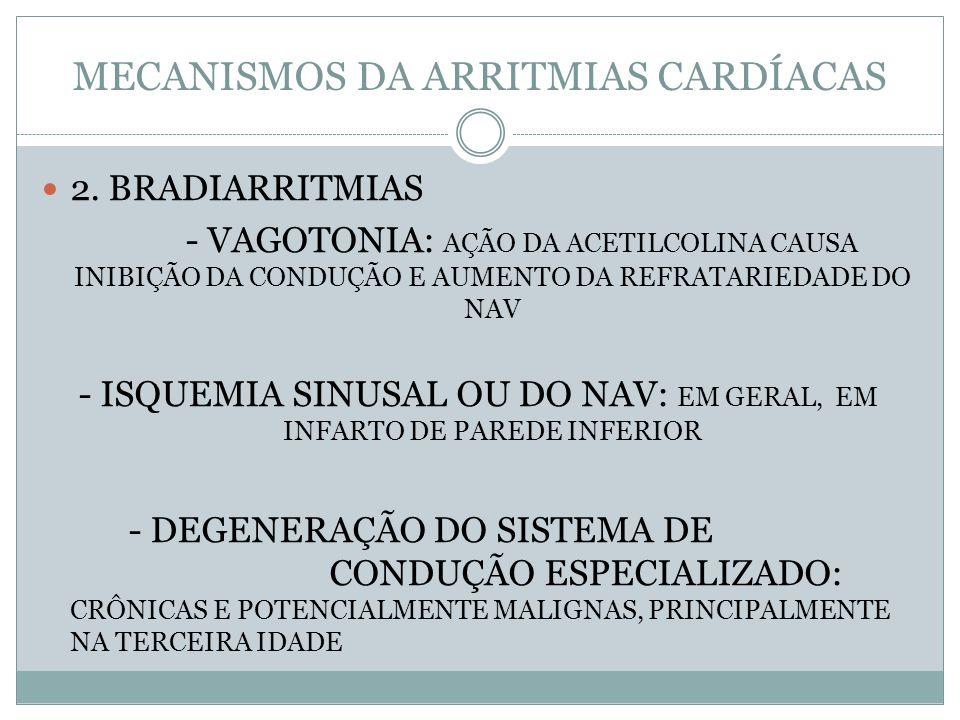 MECANISMOS DA ARRITMIAS CARDÍACAS  2. BRADIARRITMIAS - VAGOTONIA: AÇÃO DA ACETILCOLINA CAUSA INIBIÇÃO DA CONDUÇÃO E AUMENTO DA REFRATARIEDADE DO NAV