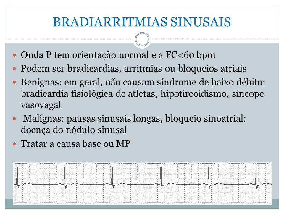 BRADIARRITMIAS SINUSAIS  Onda P tem orientação normal e a FC<60 bpm  Podem ser bradicardias, arritmias ou bloqueios atriais  Benignas: em geral, nã