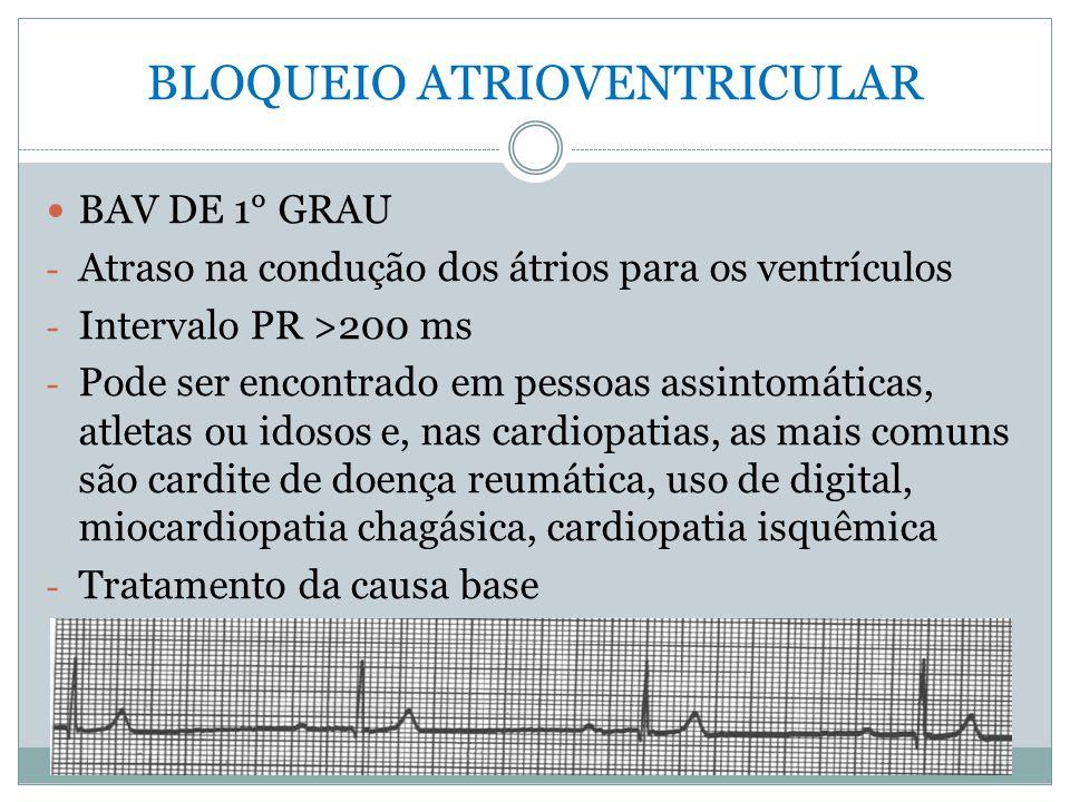 BLOQUEIO ATRIOVENTRICULAR  BAV DE 1° GRAU - Atraso na condução dos átrios para os ventrículos - Intervalo PR >200 ms - Pode ser encontrado em pessoas