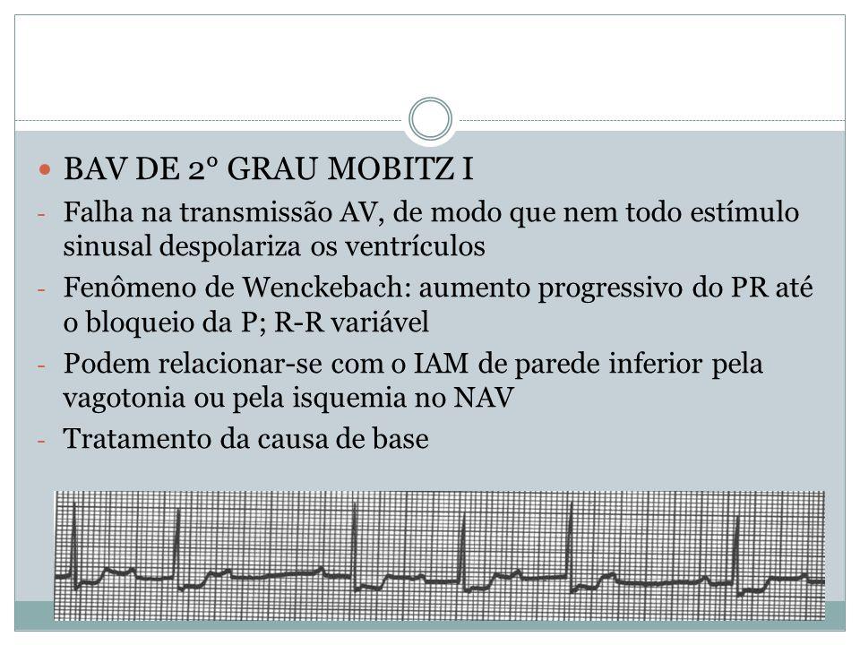  BAV DE 2° GRAU MOBITZ I - Falha na transmissão AV, de modo que nem todo estímulo sinusal despolariza os ventrículos - Fenômeno de Wenckebach: aument