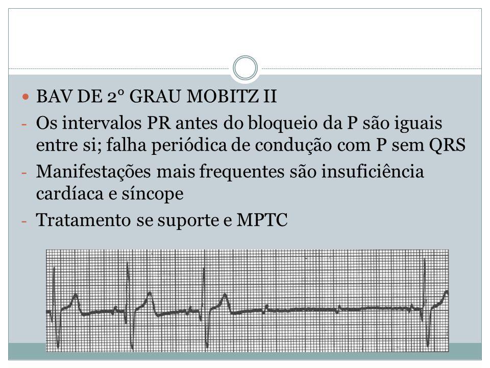  BAV DE 2° GRAU MOBITZ II - Os intervalos PR antes do bloqueio da P são iguais entre si; falha periódica de condução com P sem QRS - Manifestações ma