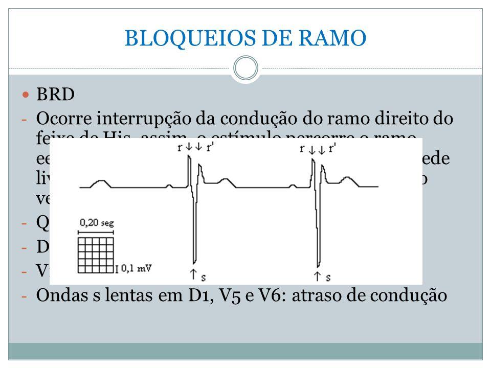 BLOQUEIOS DE RAMO  BRD - Ocorre interrupção da condução do ramo direito do feixe de His, assim, o estímulo percorre o ramo eesquerdo, despolariza o s
