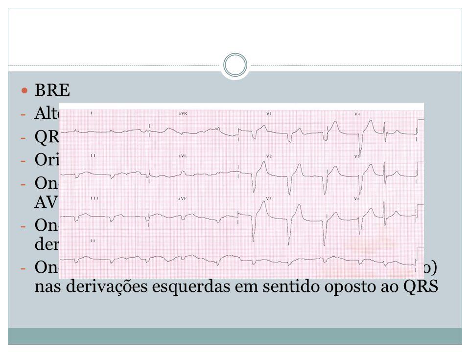  BRE - Altera despolarização ventricular desde o início - QRS com duração>120 ms - Orientação para a esquerda e para trás - Ondas R espessadas e enta