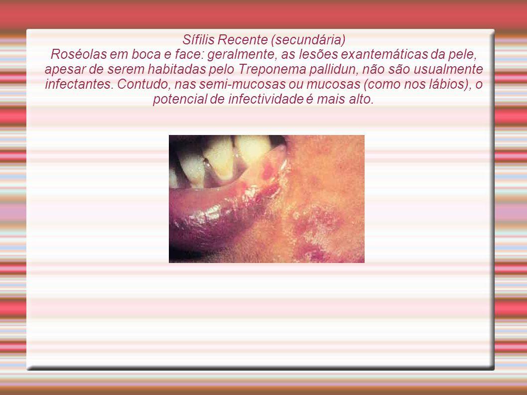 Sífilis Recente (secundária) Roséolas em boca e face: geralmente, as lesões exantemáticas da pele, apesar de serem habitadas pelo Treponema pallidun,