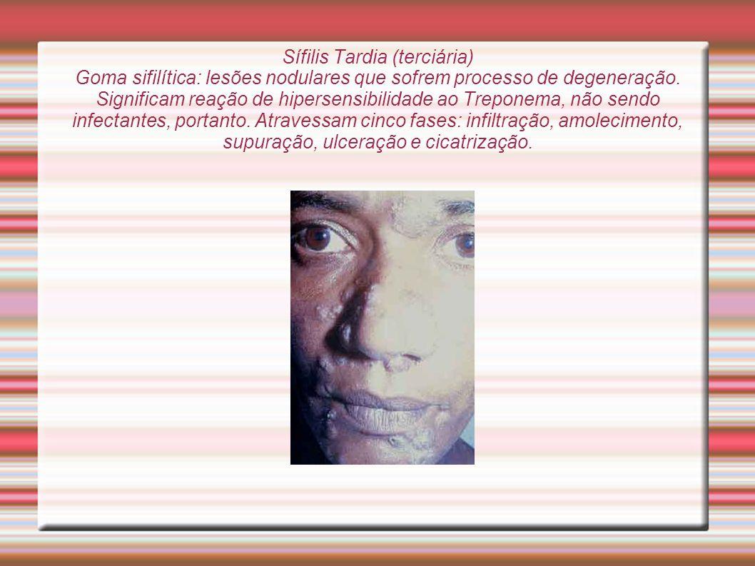 Sífilis Tardia (terciária) Goma sifilítica: lesões nodulares que sofrem processo de degeneração. Significam reação de hipersensibilidade ao Treponema,