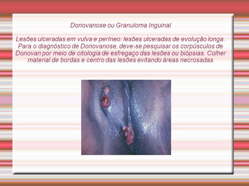 Donovanose ou Granuloma Inguinal Lesões ulceradas em vulva e períneo: lesões ulceradas de evolução longa. Para o diagnóstico de Donovanose, deve-se pe