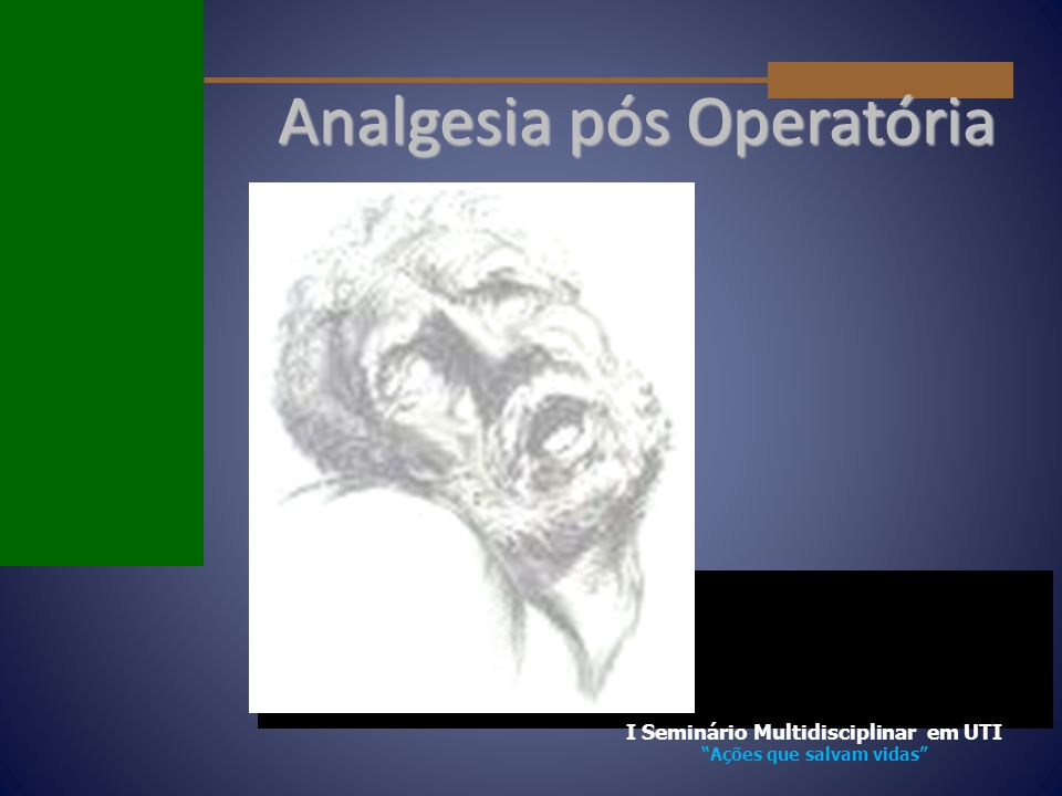 """Analgesia pós Operatória I Seminário Multidisciplinar em UTI """"Ações que salvam vidas"""""""