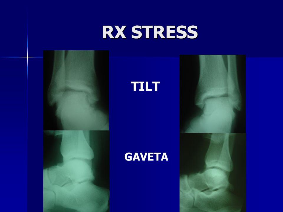RX STRESS TILT GAVETA