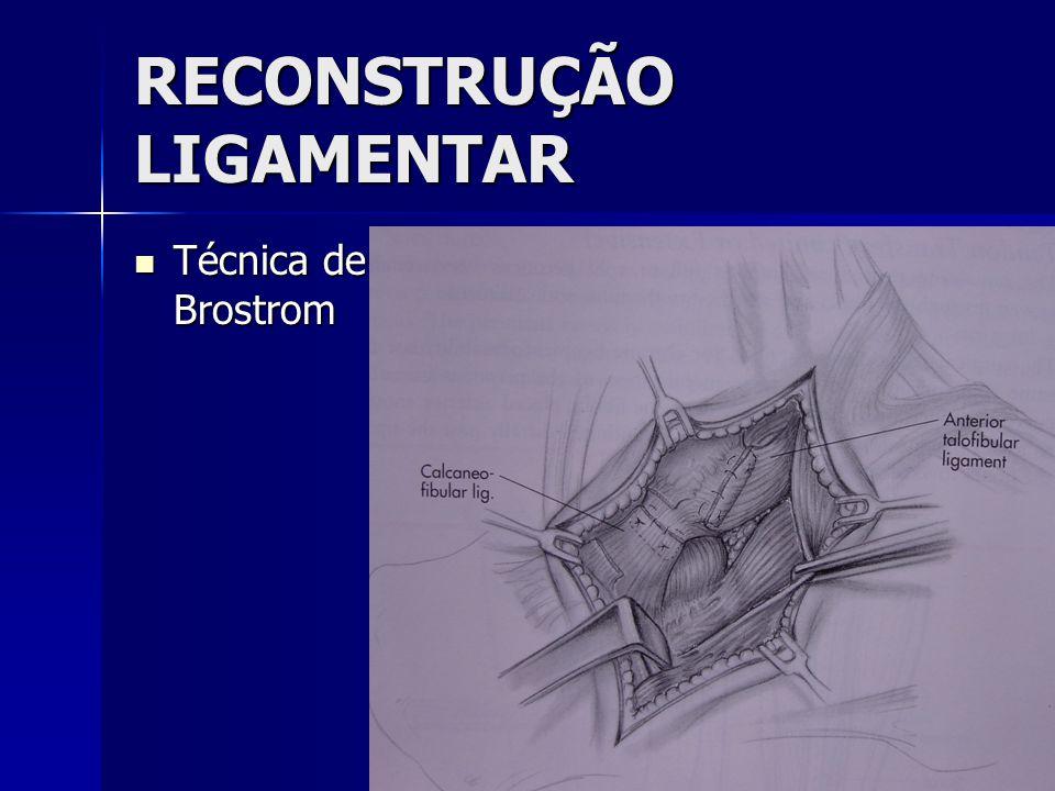 RECONSTRUÇÃO LIGAMENTAR  Técnica de Brostrom