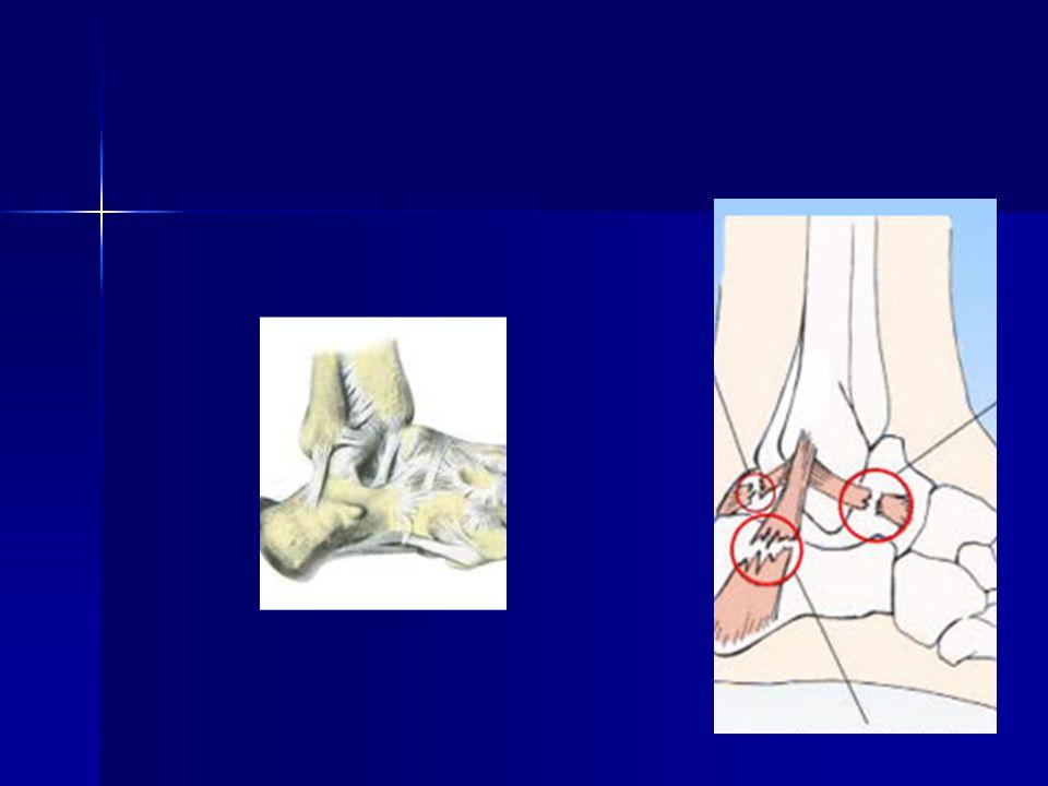 TRATAMENTO – LESÃO AGUDA  Lesões tipo I e tipo II = Tratamento conservador 1) limitar a extenção da lesão 2) Restaurar a ADM 3) Recuperar a propiocepção  Lesões tipo III = Controvércia - Resultados do tratamento conservador X cirúrgico se equivalem.