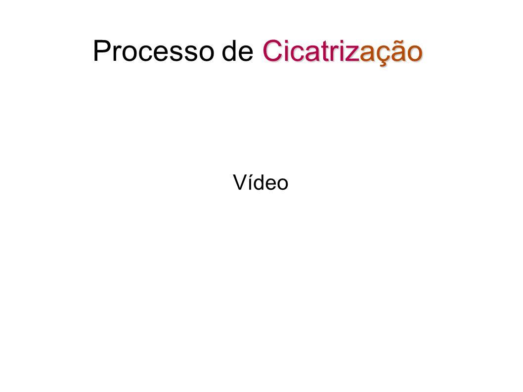 Cicatrização Processo de Cicatrização Vídeo