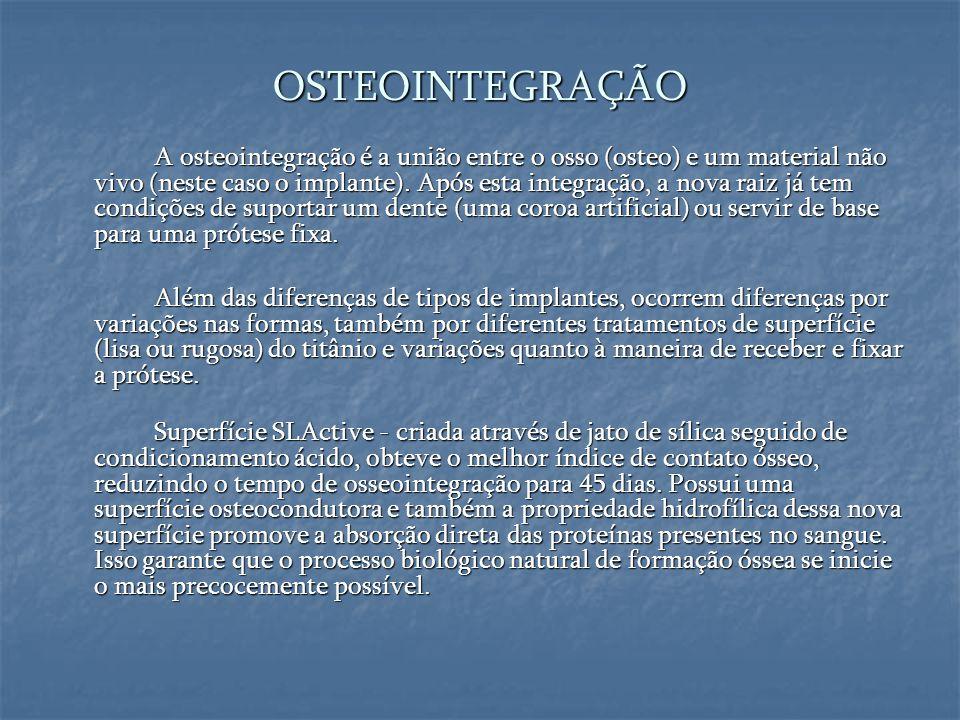 OSTEOINTEGRAÇÃO A osteointegração é a união entre o osso (osteo) e um material não vivo (neste caso o implante). Após esta integração, a nova raiz já