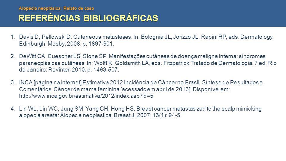Alopécia neoplásica: Relato de caso REFERÊNCIAS BIBLIOGRÁFICAS 1.Davis D, Pellowski D. Cutaneous metastases. In: Bolognia JL, Jorizzo JL, Rapini RP, e