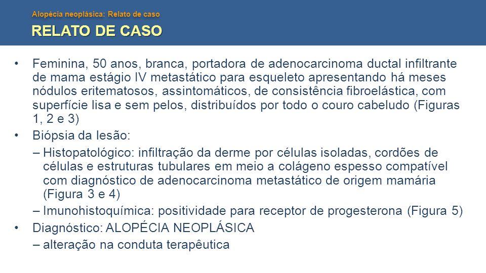 Alopécia neoplásica: Relato de caso RELATO DE CASO •Feminina, 50 anos, branca, portadora de adenocarcinoma ductal infiltrante de mama estágio IV metas