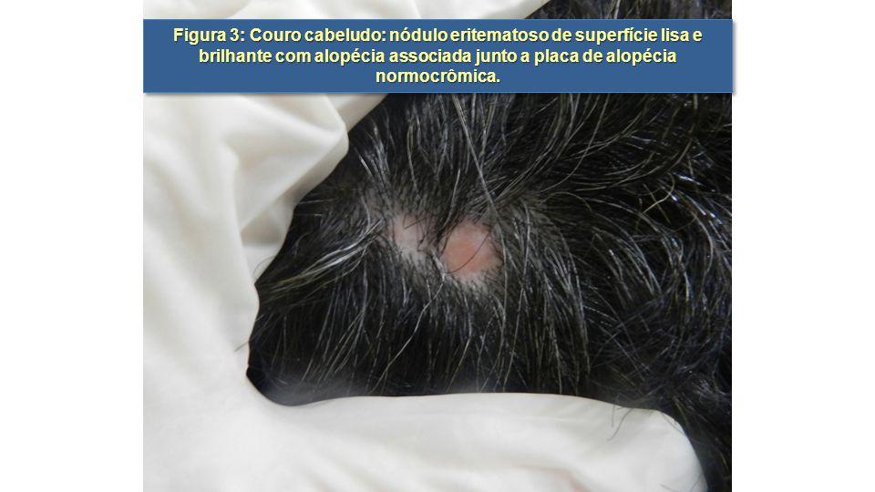 Figura 3: Couro cabeludo: nódulo eritematoso de superfície lisa e brilhante com alopécia associada junto a placa de alopécia normocrômica.