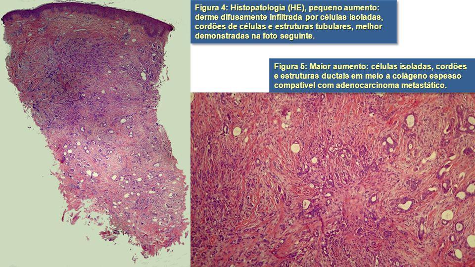 Figura 5: Maior aumento: células isoladas, cordões e estruturas ductais em meio a colágeno espesso compatível com adenocarcinoma metastático. Figura 4