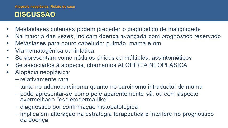 Alopécia neoplásica: Relato de caso DISCUSSÃO •Mestástases cutâneas podem preceder o diagnóstico de malignidade •Na maioria das vezes, indicam doença